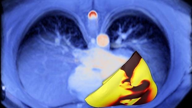 A partir de la exploración del corazon del paciente (azul), se desarrolla un corazón virtual que revela la presencia de la arritmia, indicado por la activación eléctrica no uniforme (rojo-amarillo)