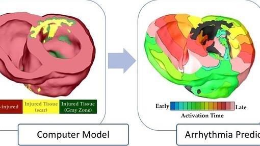 Los modelos específicos de pacientes cardíacos se construyen a partir de datos de imágenes clínicas. Un modelo de corazón virtual se utiliza para predecir el riesgo del paciente de arritmias letales