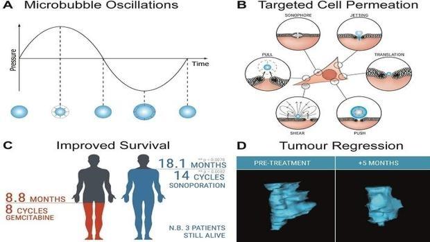 Aumento de la supervivencia en el cáncer de páncreas con la 'sonicación celular'