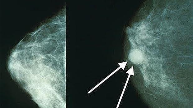 Un fármaco ya disponible puede prevenir el cáncer de mama asociado al gen 'BRCA1'