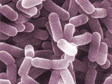Los probióticos parecen ayudar a prevenir el cáncer de mama