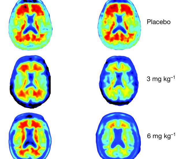 Una terapia detiene el deterioro cognitivo asociado al alzhéimer en pacientes
