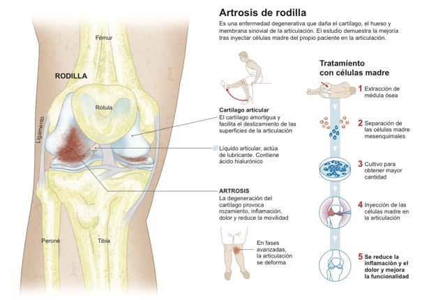 La terapia con células madre demuestra su eficacia en la artrosis de ...