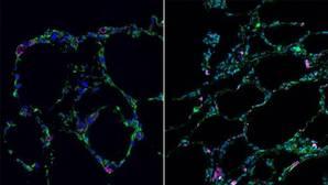 Desarrollan 'mini-pulmones' tridimensionales a partir de células madre