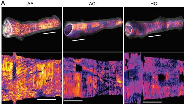 Imagen del músculo liso de las vías respiratorias