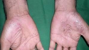 La psoriasis afecta la calidad de vida de los pacientes
