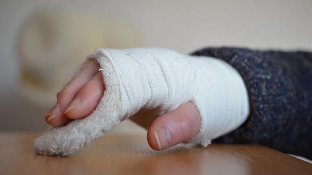 Los pacientes con diabetes tienen una menor capacidad para curarse de sus fracturas