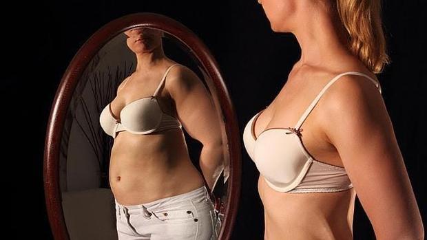 La anorexia es más común en las mujeres de mediana edad