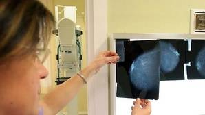 La mitad de las mujeres con cáncer de mama sufren algún efecto secundario grave