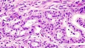 Una nueva combinación farmacológica duplica la supervivencia en el cáncer de páncreas