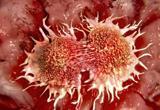 El cáncer crece más de lo estimado y supera lo previsto para el año 2020