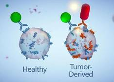 El cáncer de páncreas puede ser diagnosticado de forma precoz con un análisis de sangre