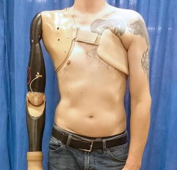 Brazo protésico robótico