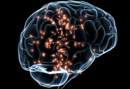 El estrés y la falta de sueño, principales desencadenantes de las crisis en la epilepsia