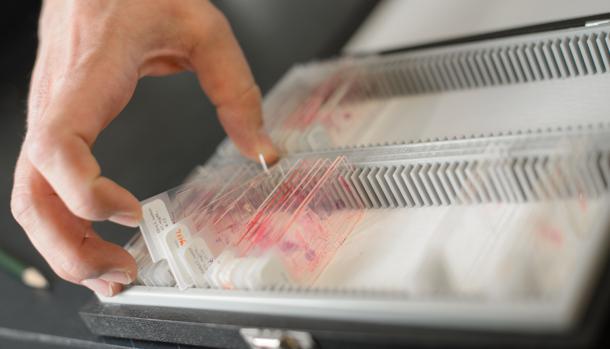 Un fármaco antitumoral parece preservar la fertilidad después del tratamiento con quimioterapia