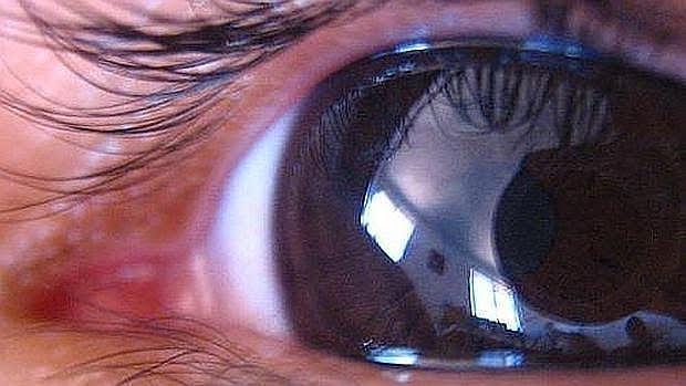 En nuestro país convivien cerca de un millón de personas con glaucoma
