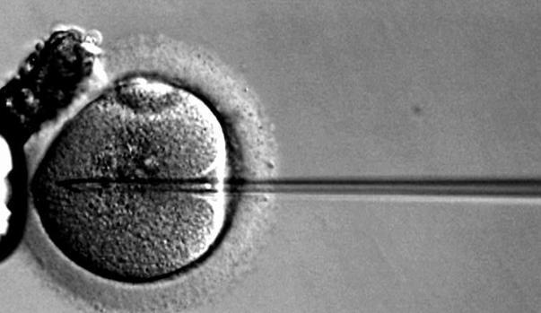 Fertilización in vitro de un óvulo humano