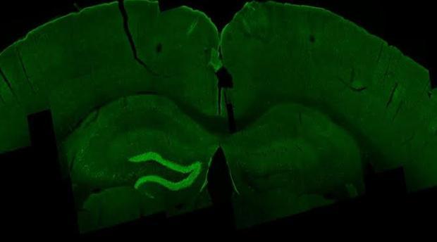 Estimulación con la ETI del hipocampo (en verde) de un ratón