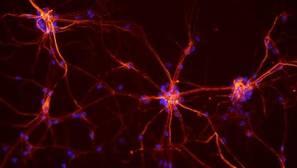 Grupon de neuronas