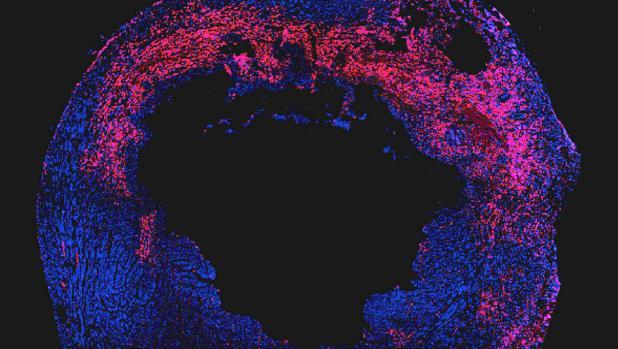 Corte del corazón de un ratón