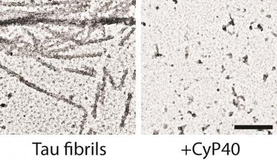 Desagregación de ovillos neurofibrilares de proteína tau tras la exposición a Cyp40 (derecha)