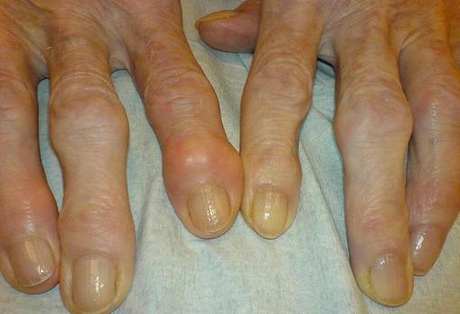 Paciente con artrosis en los dedos