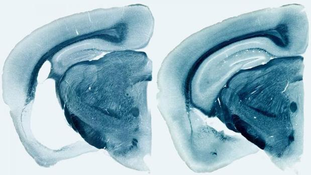 Reducción de áreas cerebrales en un ratón portador del gen 'ApoE4' humano (derecha)
