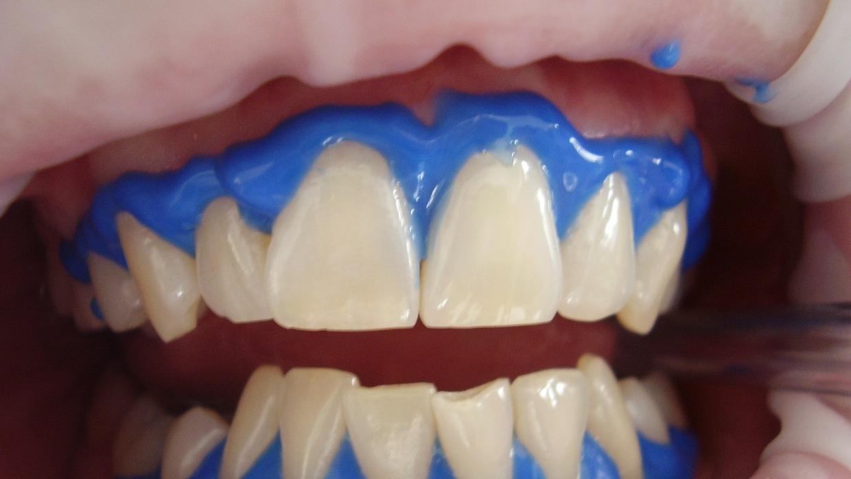 cuanto reduced in price on the market un blanqueadura de dientes