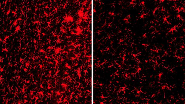 Las células inmunes están más activadas (rojo) en los cerebros de los ratones con el gen TREM2 (izquierda) que en aquellos sin el gen (derecha).