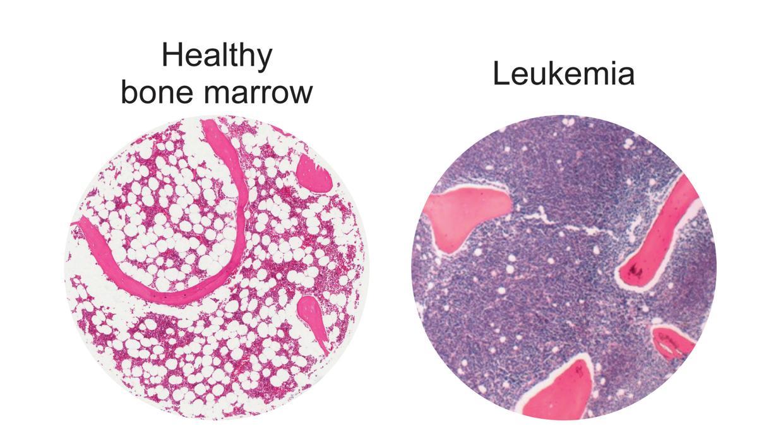 Las grasas, nueva diana para tratar un tipo agresivo de leucemia