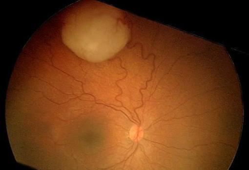 El retinoblastoma afecta sobre todo a niños menores de 5 años