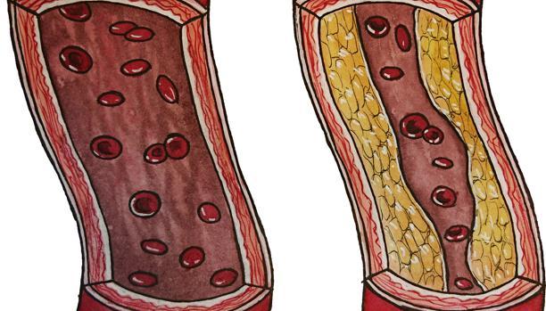 Arteria osbtruida (dcha)