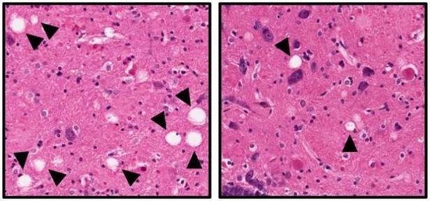 Disminución de muerte neuronal (en blanco) con el fármaco experimental (izquierda)