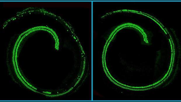 El tratamiento evita la pérdida de células pilosas en la cóclea (izquierda)