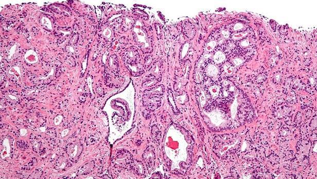 Histología de células tumorales