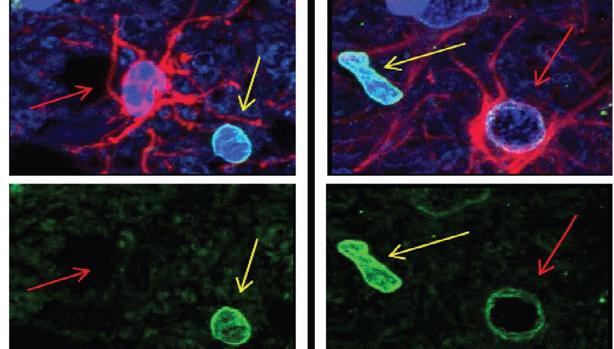 Muestras post-mortem de individuos con párkinson, las células cerebrales llamadas astrocitos muestran evidencia de senescencia celular. Las células senescentes pierden una proteína específica de sus núcleos; esta proteína está indicada con la señal verde en la imagen de arriba. Dicha proteína se pierde de los astrocitos (glóbulos rojos), pero no de las células vecinas. En la imagen de la izda., los astrocitos no parecen ser senescentes en individuos de control.