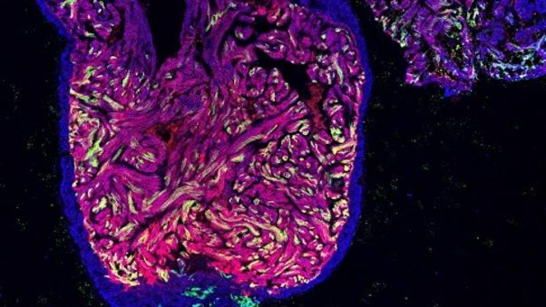Describen un mecanismo por el que las células cardiacas del pez cebra regeneran el corazón