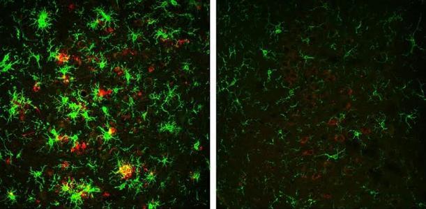 Reducción de placas de beta-amiloide (rojo) y de células activadas de la microglía (verde) con la inhibición de BACE1 (derecha)