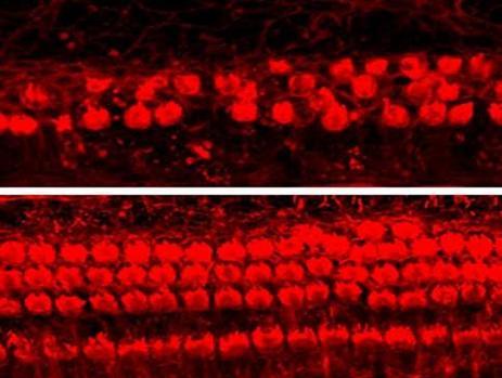 Prevención de la pérdida de células ciliadas con la kenapaulona (abajo)