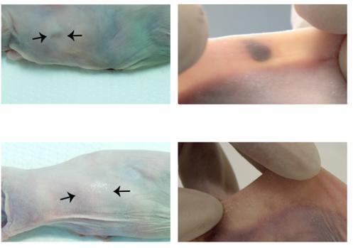 El chivato tatuaje se trasplató en ratones con cáncer