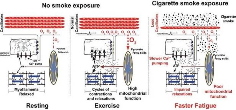 Ultimos Avances en Ciencia y Salud - Página 14 Tobaccoeffects-kOt--1240x698@abc