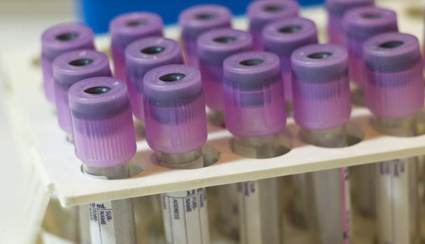 Análisis de sangre para detectar precozmente el autismo