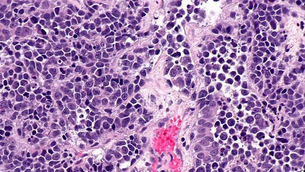Carcinoma de vejiga