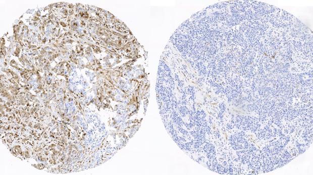 Tejido mamario de una paciente con recaída y que presenta los marcadores de fosforilación activos (izquierda; color marrón intenso), frente al tejido procedente de una paciente sin recaída y que no presenta estos marcadores activos (derecha)