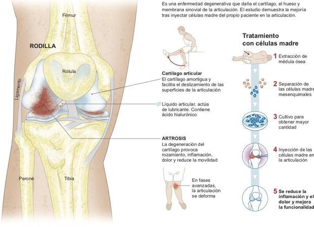 Artrosis de rodilla. CUN.