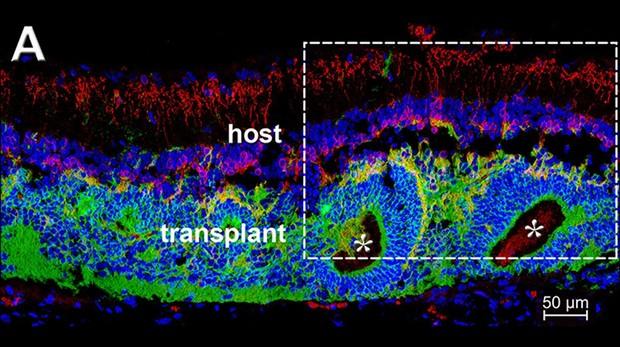 El trasplante logra que las células sea sesibles a la luez de nuevo