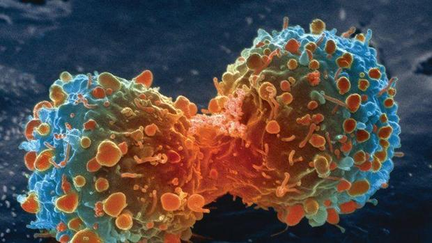 Célula cáncer de pulmón
