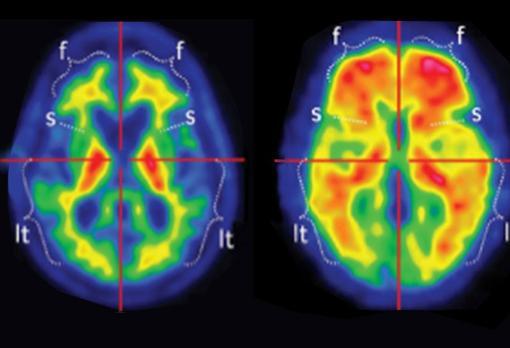 Cerebro con y sin placas de beta amiloide