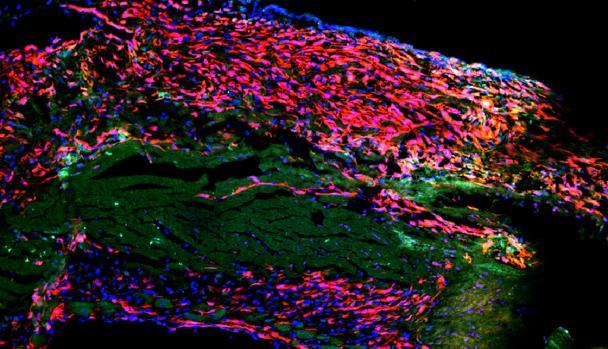 Parte de la pared cardíaca del corazón de ratón después de un infarto de miocardio. Se puede ver el tejido cicatricial (rojo) y las células musculares del corazón muerto (verde).