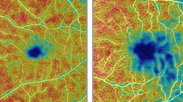 A la izquierda, la retina de una persona sana muestra una densa red de vasos sanguíneos, las áreas de mayor densidad resaltadas en rojo y naranja. A la derecha, la retina de una persona con enfermedad de Alzheimer muestra áreas en azul y verde azulado donde los vasos sanguíneos son menos densos.